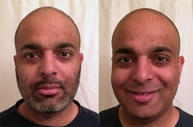 Sujeet - Before and After